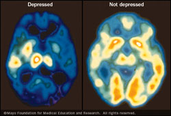 افسردگی