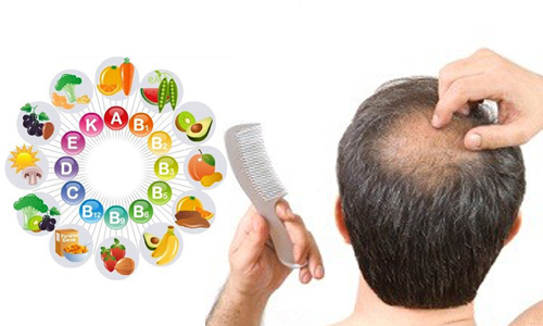 توصیه های غذایی برای تقویت موها